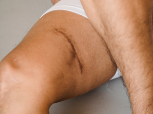 Read more about the article Tenho uma cicatriz, posso fazer algo por ela?